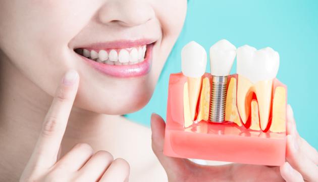 implant-zubov-1