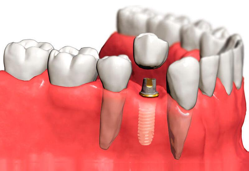 implant-zubov-3