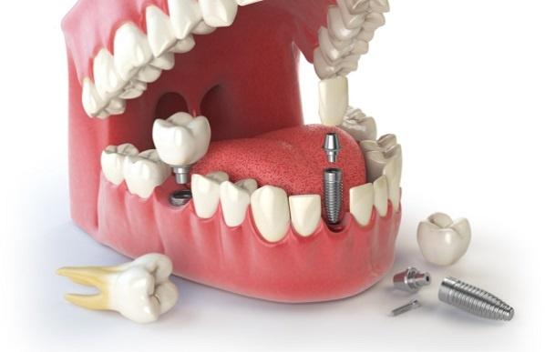 implant-zubov-6