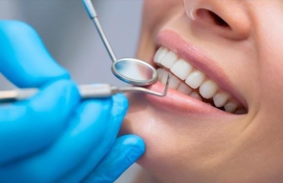О показаниях к имплантации зубов