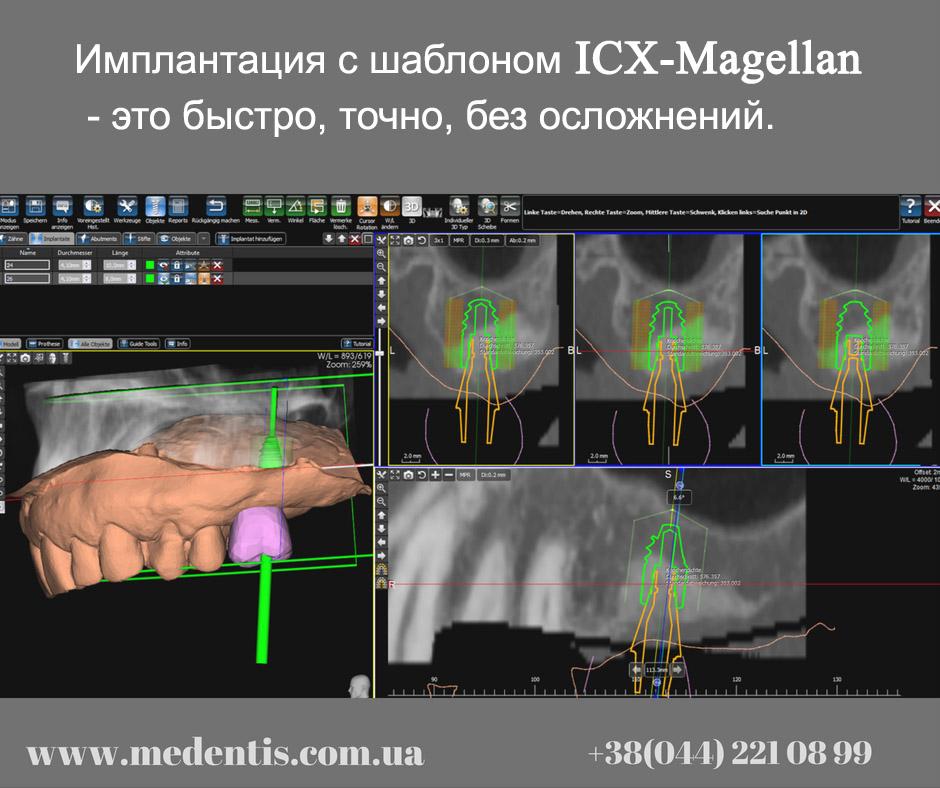 Шаблоны для установки имплантов
