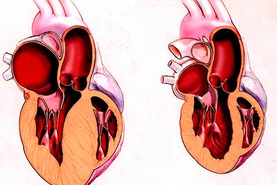 Кардиомиопатия, гипертония и инсульт — риски у женщин, употребляющих алкоголь