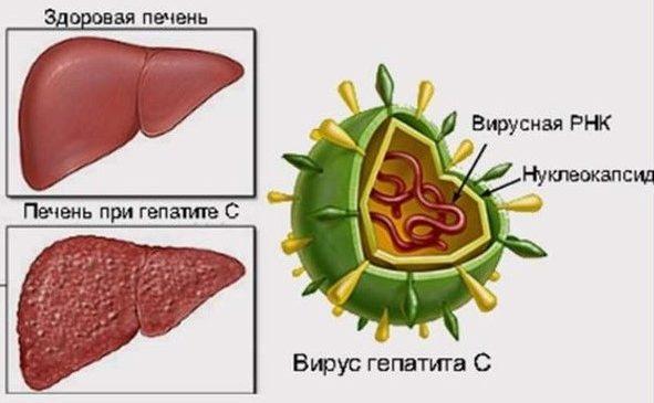 Об эффективном лечении гепатита С
